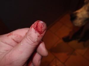In den Finger geschnitten